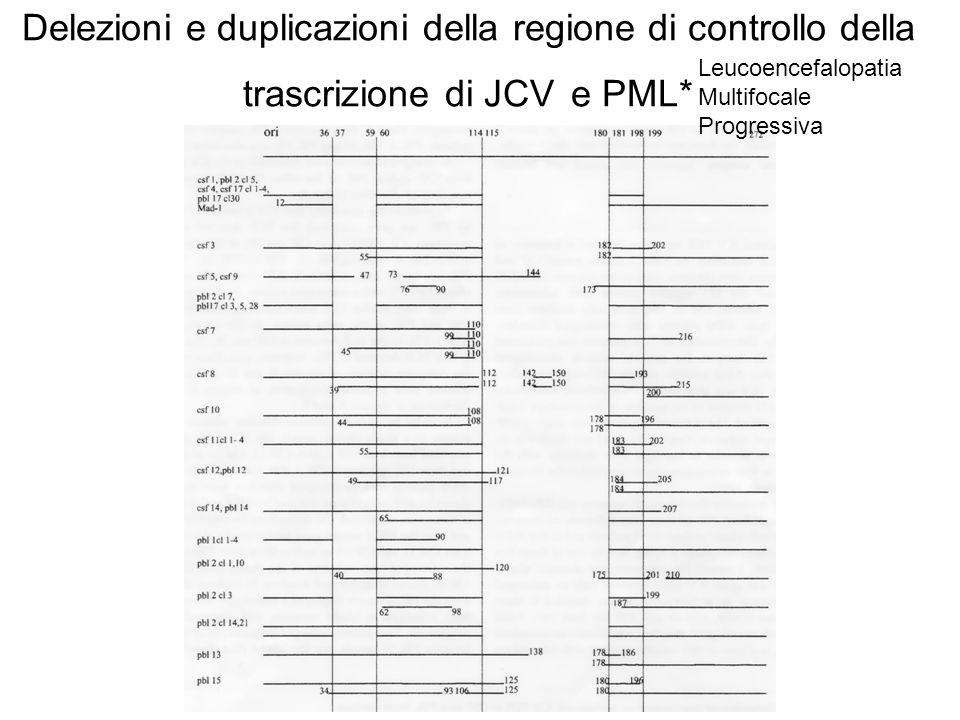Delezioni e duplicazioni della regione di controllo della trascrizione di JCV e PML* (Ciappi et al 1999)