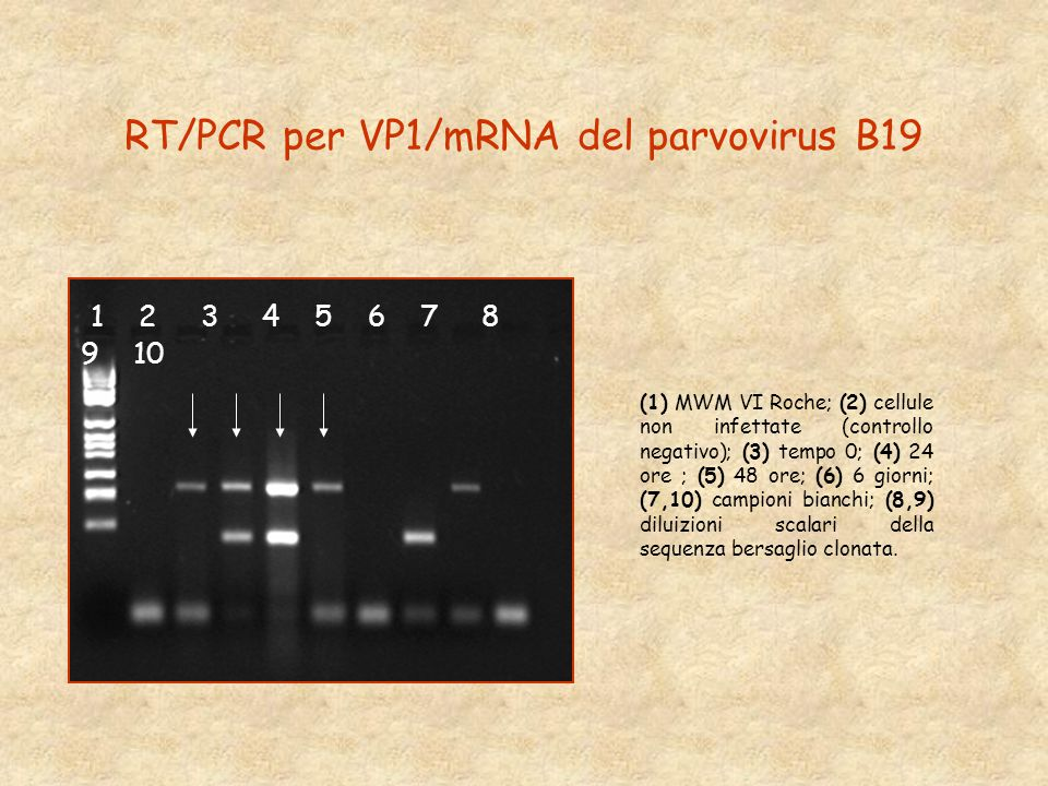 RT/PCR per VP1/mRNA del parvovirus B19