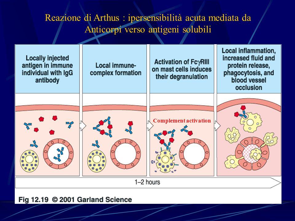 Reazione di Arthus : ipersensibilità acuta mediata da Anticorpi verso antigeni solubili