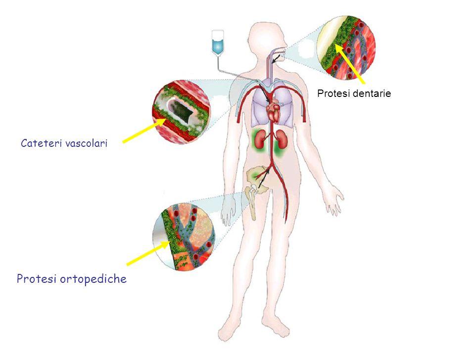 Cateteri vascolari Protesi ortopediche Protesi dentarie