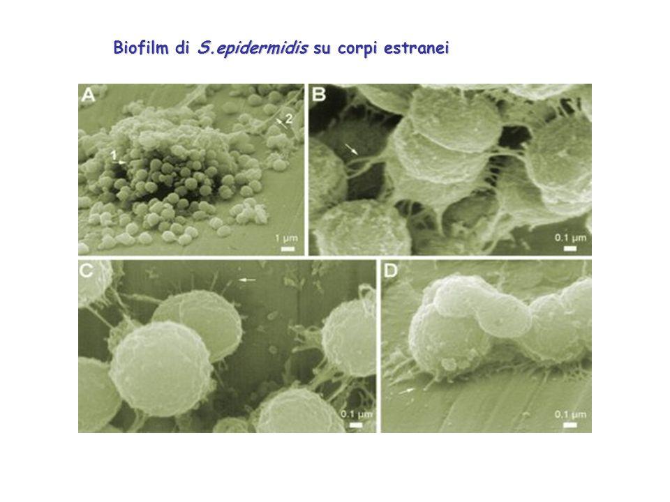 Biofilm di S.epidermidis su corpi estranei