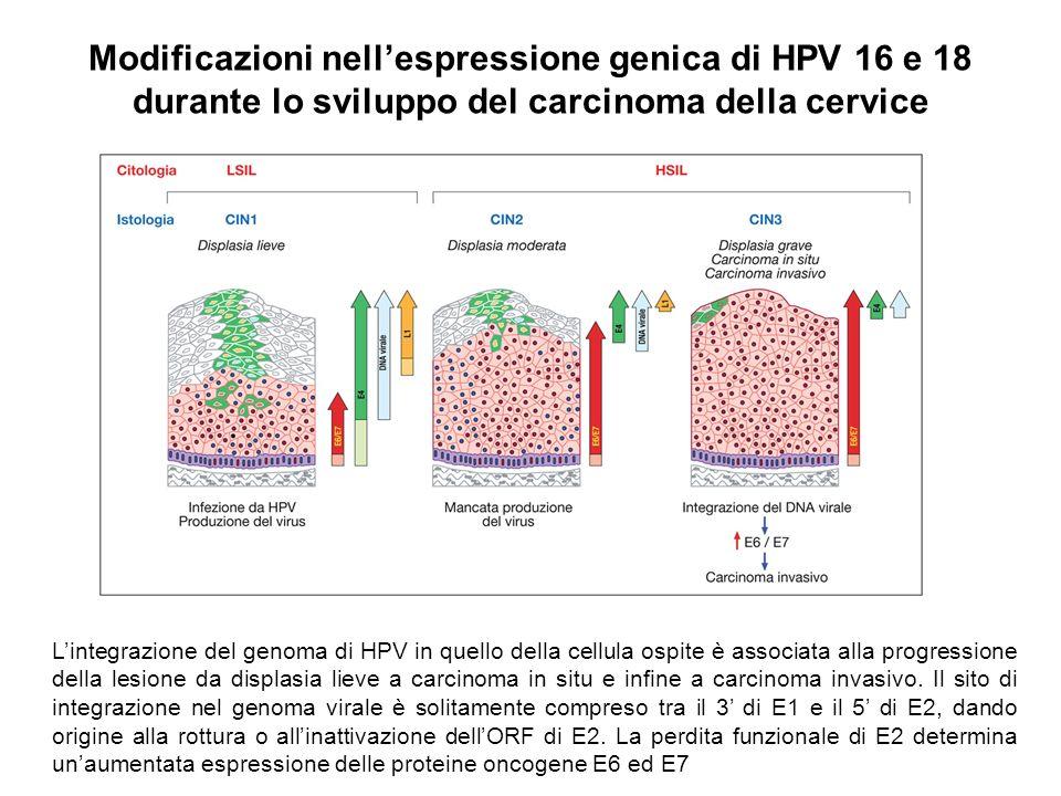 Modificazioni nell'espressione genica di HPV 16 e 18 durante lo sviluppo del carcinoma della cervice