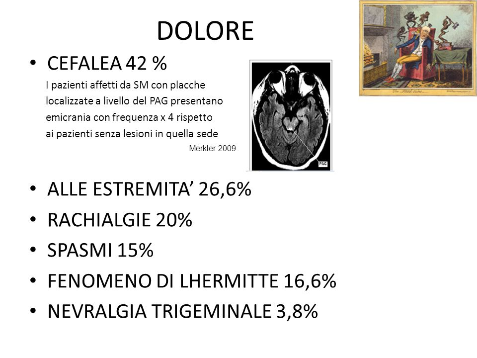 DOLORE CEFALEA 42 % ALLE ESTREMITA' 26,6% RACHIALGIE 20% SPASMI 15%
