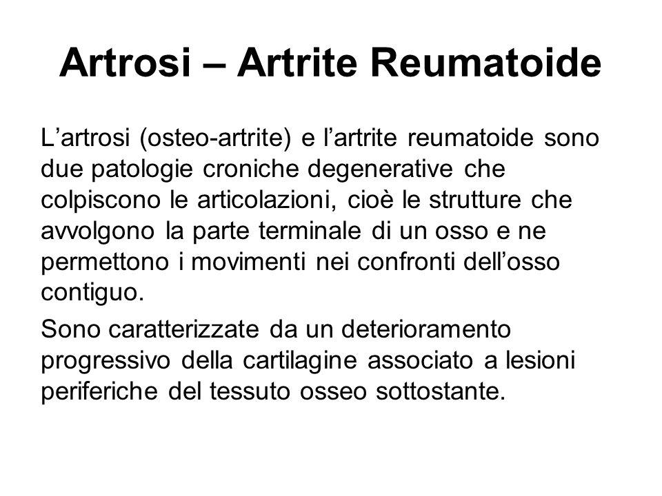 Artrosi – Artrite Reumatoide