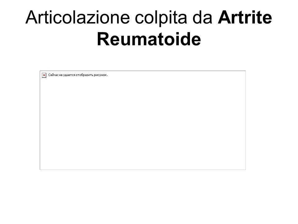 Articolazione colpita da Artrite Reumatoide