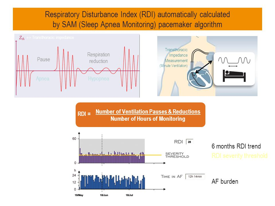 Respiratory Disturbance Index (RDI) automatically calculated by SAM (Sleep Apnea Monitoring) pacemaker algorithm
