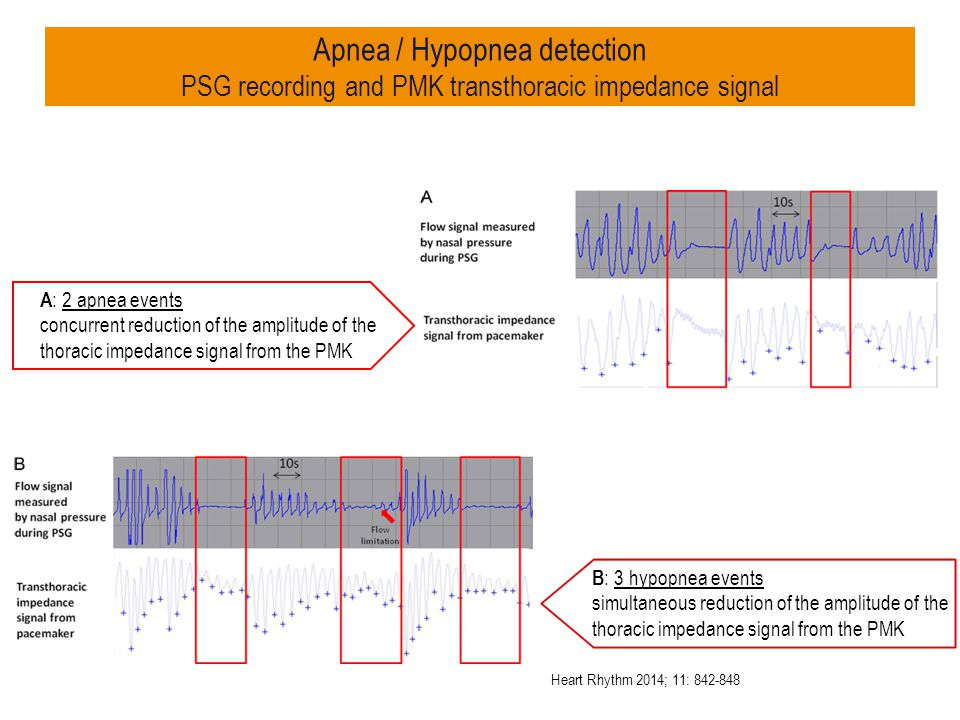 Apnea / Hypopnea detection PSG recording and PMK transthoracic impedance signal