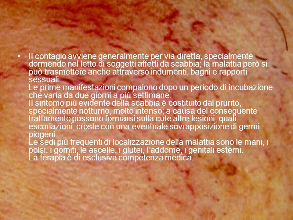 Il contagio avviene generalmente per via diretta, specialmente dormendo nel letto di soggetti affetti da scabbia; la malattia però si può trasmettere anche attraverso indumenti, bagni e rapporti sessuali.