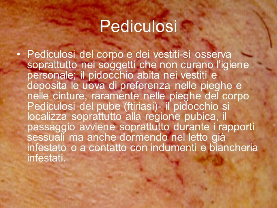Pediculosi