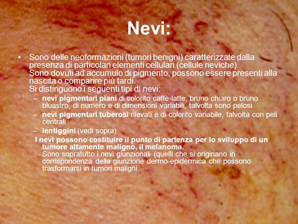 Nevi: