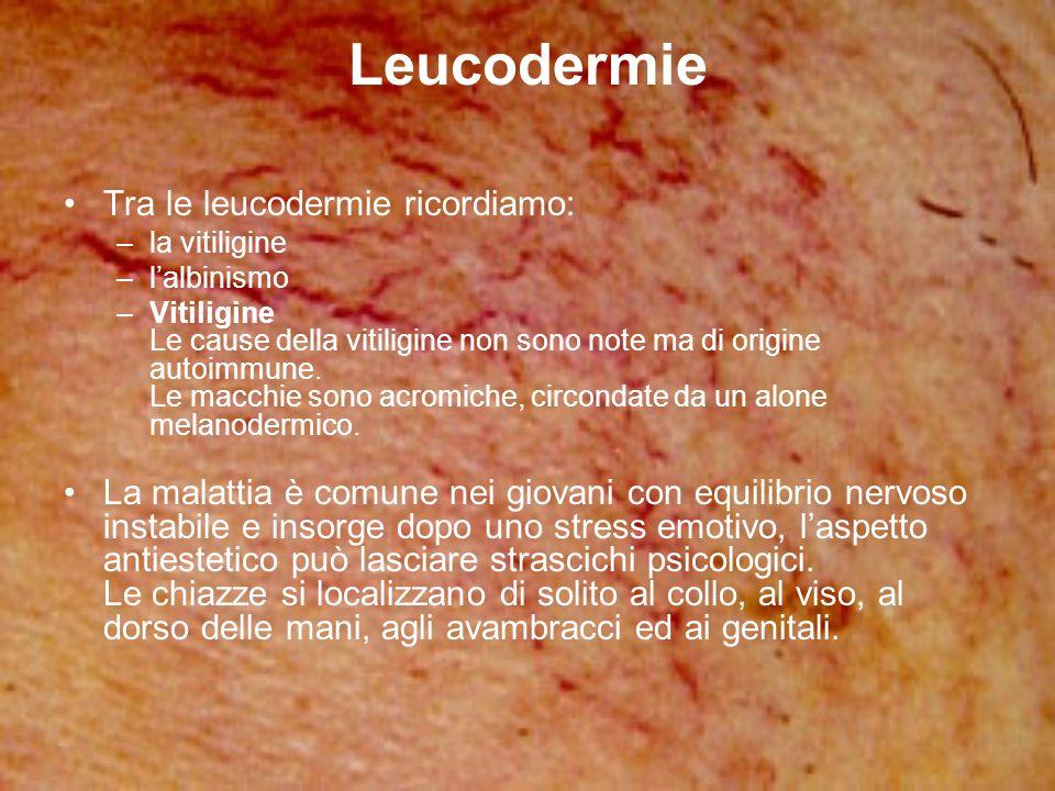 Leucodermie Tra le leucodermie ricordiamo: