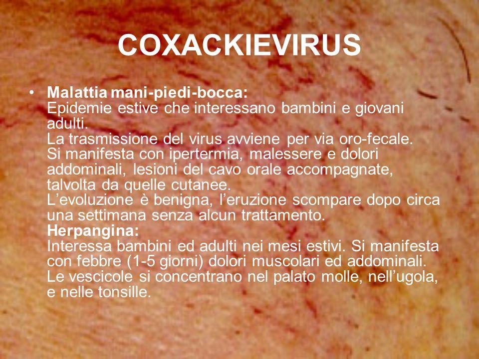 COXACKIEVIRUS