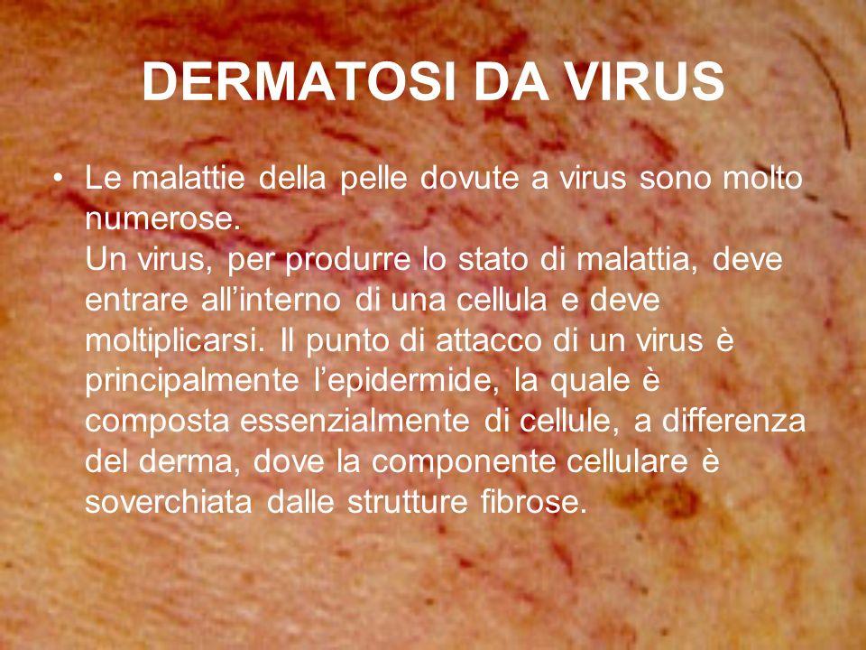 DERMATOSI DA VIRUS