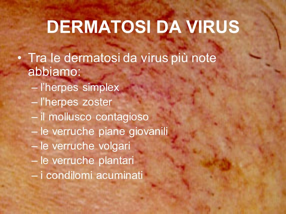 DERMATOSI DA VIRUS Tra le dermatosi da virus più note abbiamo: