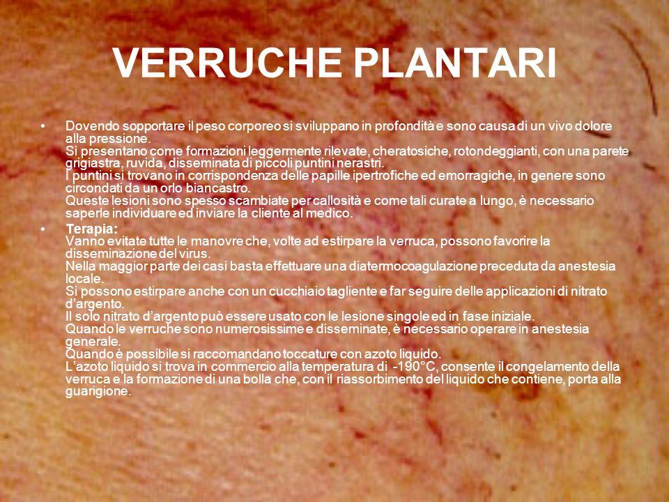 VERRUCHE PLANTARI