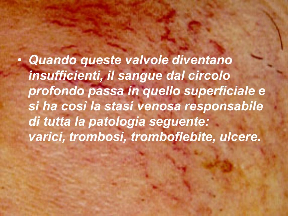 Quando queste valvole diventano insufficienti, il sangue dal circolo profondo passa in quello superficiale e si ha così la stasi venosa responsabile di tutta la patologia seguente: varici, trombosi, tromboflebite, ulcere.