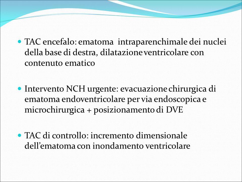 TAC encefalo: ematoma intraparenchimale dei nuclei della base di destra, dilatazione ventricolare con contenuto ematico