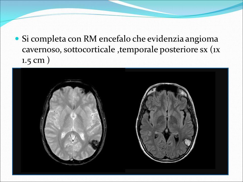 Si completa con RM encefalo che evidenzia angioma cavernoso, sottocorticale ,temporale posteriore sx (1x 1.5 cm )