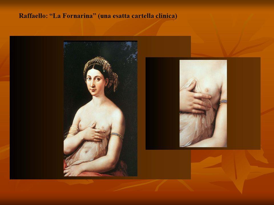 Raffaello: La Fornarina (una esatta cartella clinica)