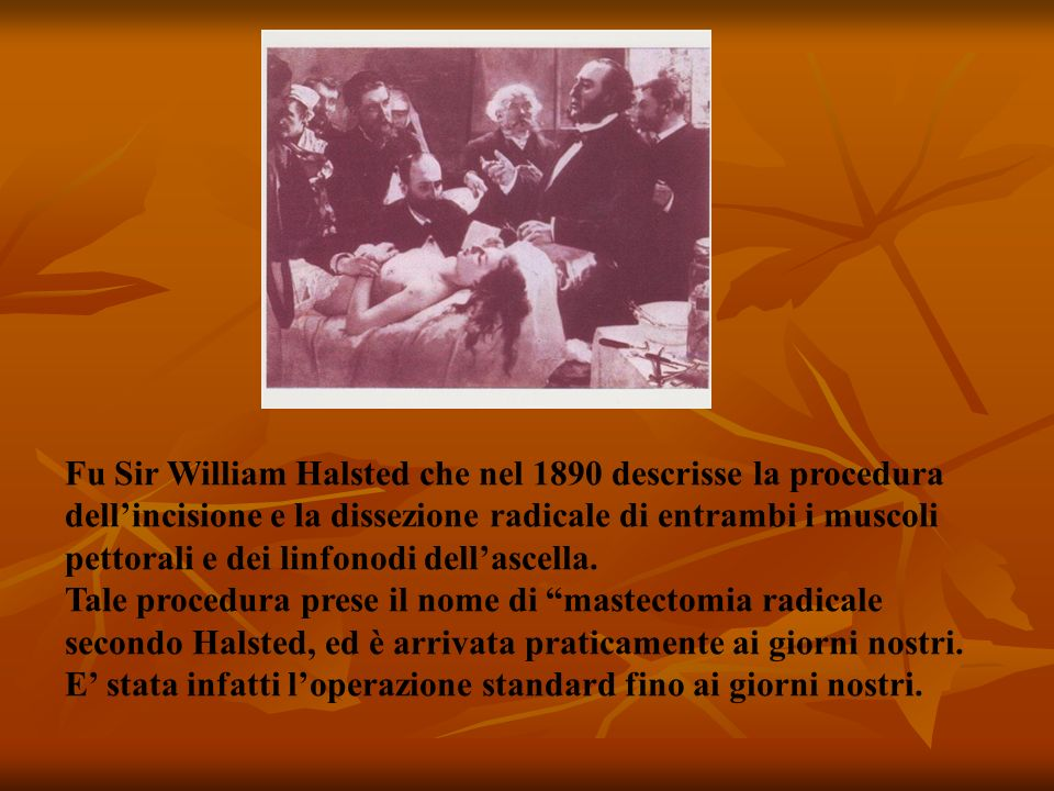 Fu Sir William Halsted che nel 1890 descrisse la procedura dell'incisione e la dissezione radicale di entrambi i muscoli pettorali e dei linfonodi dell'ascella.