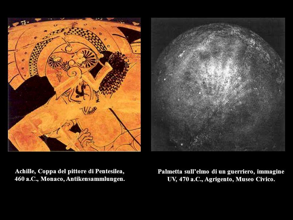Achille, Coppa del pittore di Pentesilea, 460 a. C