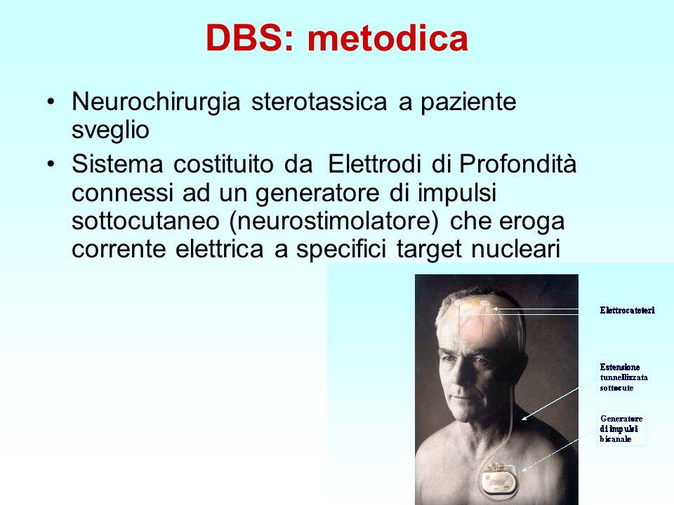 DBS: metodica Neurochirurgia sterotassica a paziente sveglio