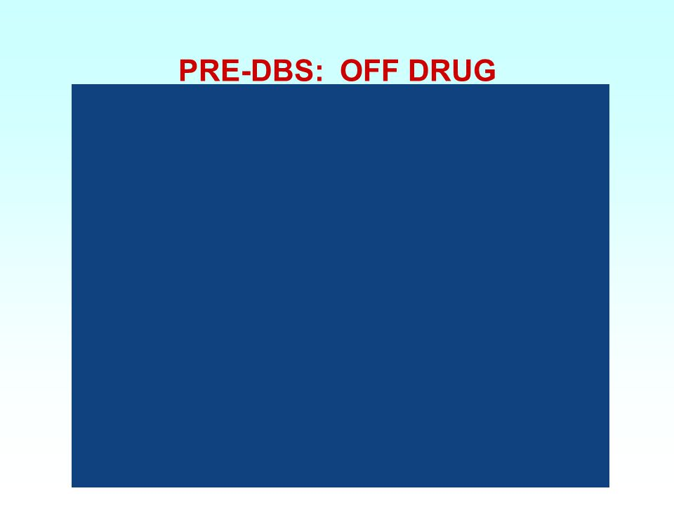 PRE-DBS: OFF DRUG