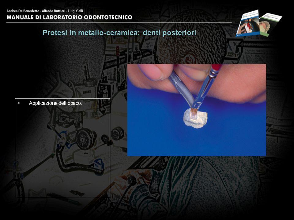 Protesi in metallo-ceramica: denti posteriori