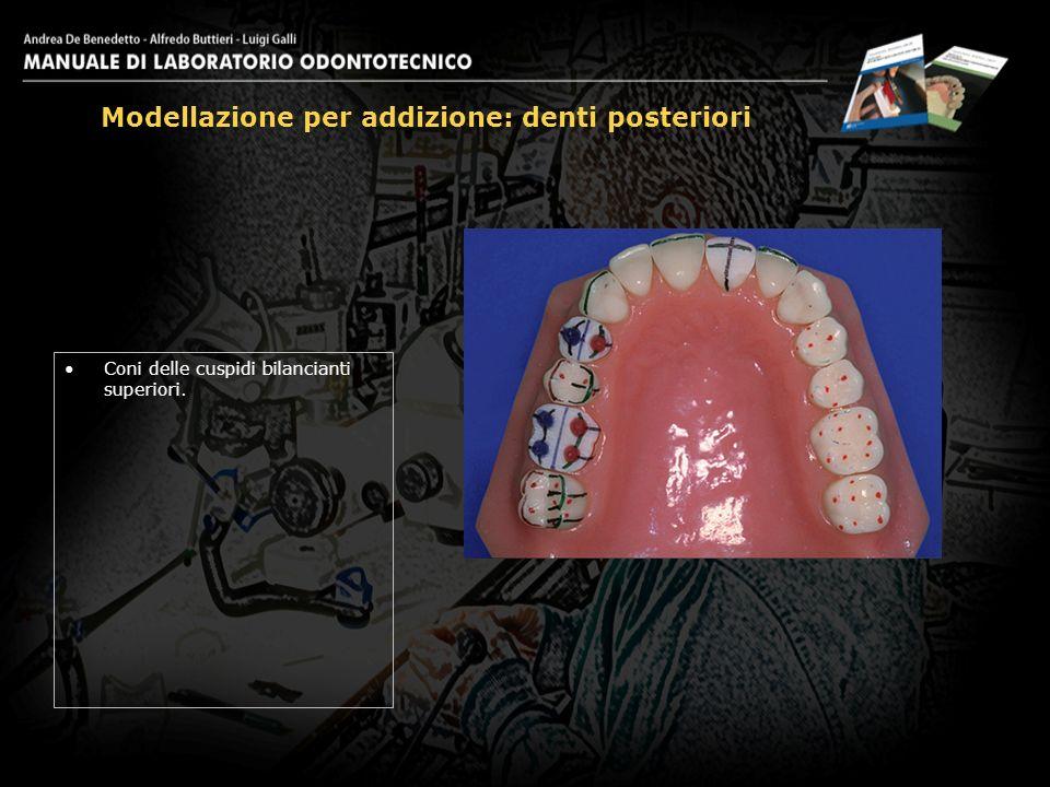 Modellazione per addizione: denti posteriori