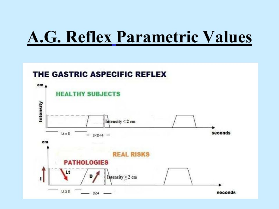 A.G. Reflex Parametric Values