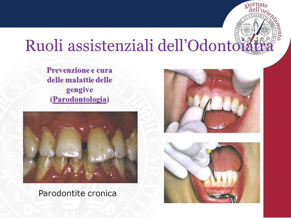 Prevenzione e cura delle malattie delle gengive (Parodontologia)