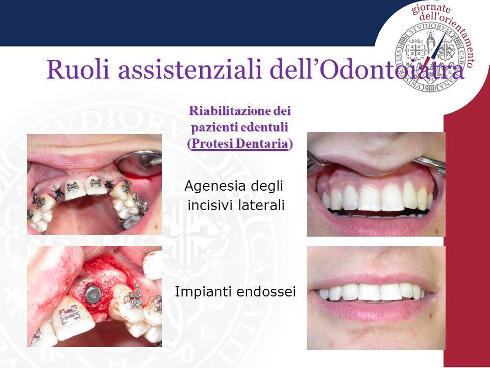 Riabilitazione dei pazienti edentuli (Protesi Dentaria)