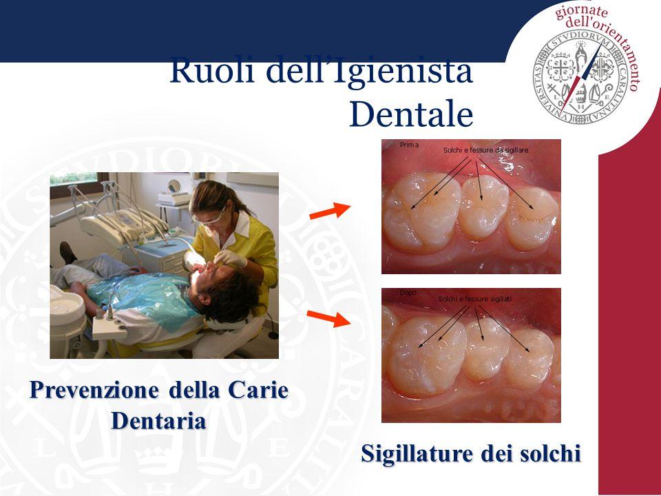 Prevenzione della Carie Dentaria Sigillature dei solchi
