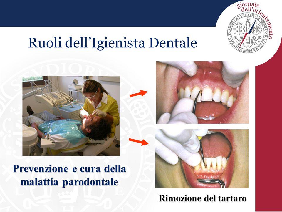 Prevenzione e cura della malattia parodontale