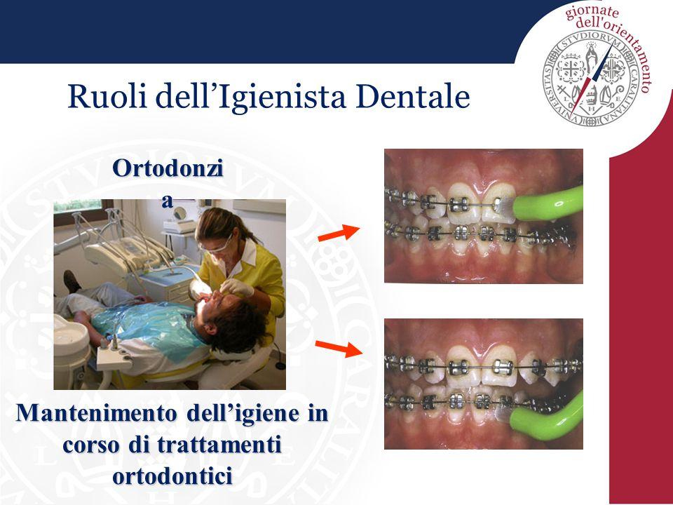 Mantenimento dell'igiene in corso di trattamenti ortodontici
