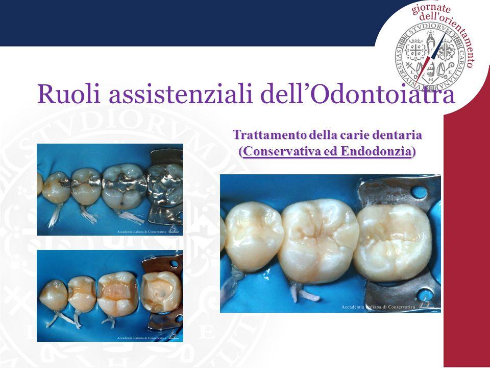 Trattamento della carie dentaria (Conservativa ed Endodonzia)