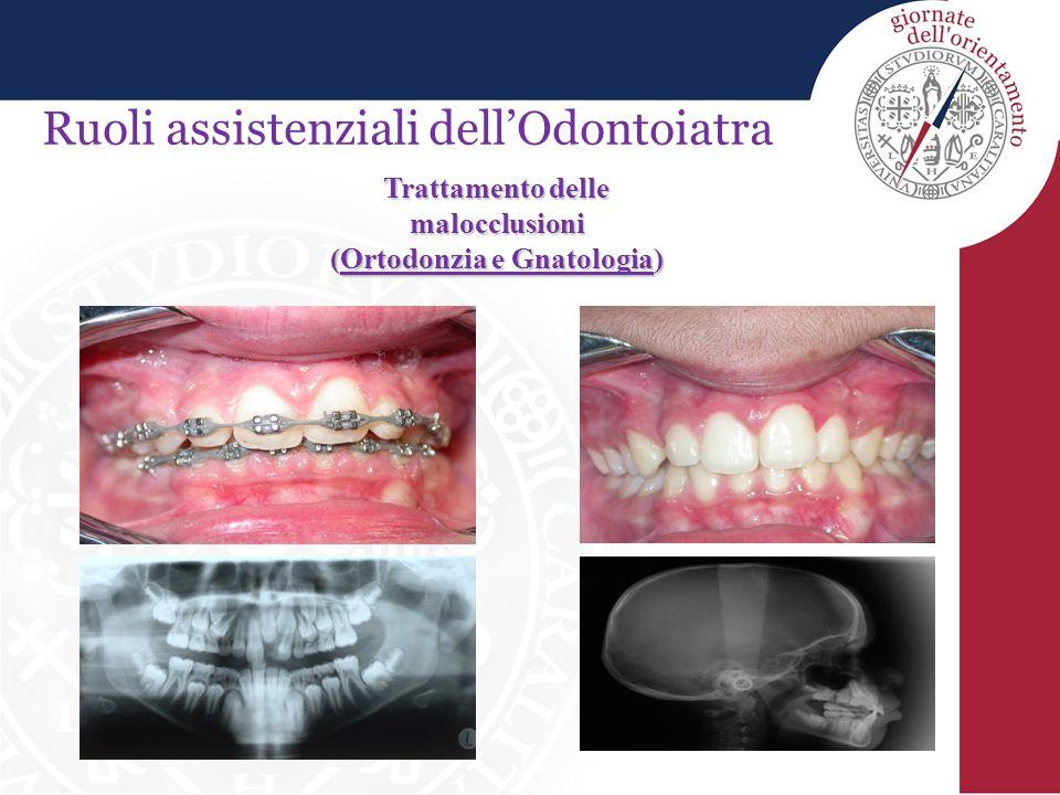 Trattamento delle malocclusioni (Ortodonzia e Gnatologia)
