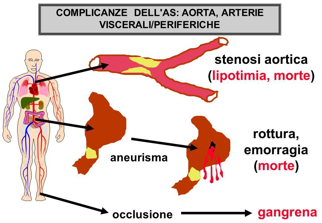 stenosi aortica (lipotimia, morte) rottura, emorragia (morte)