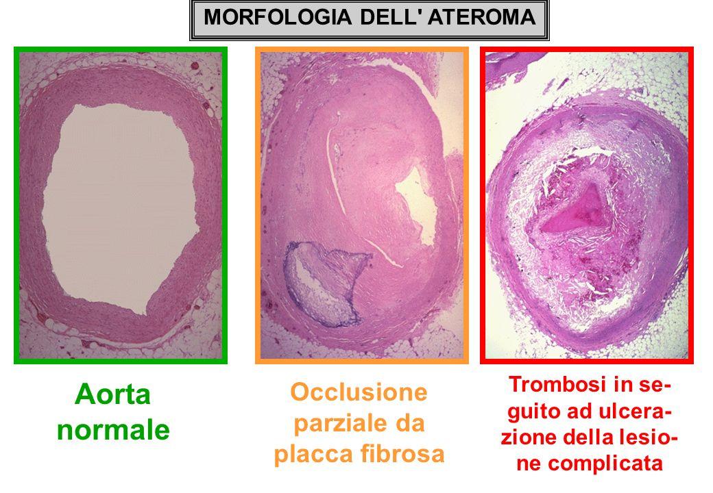 Aorta normale Occlusione parziale da placca fibrosa