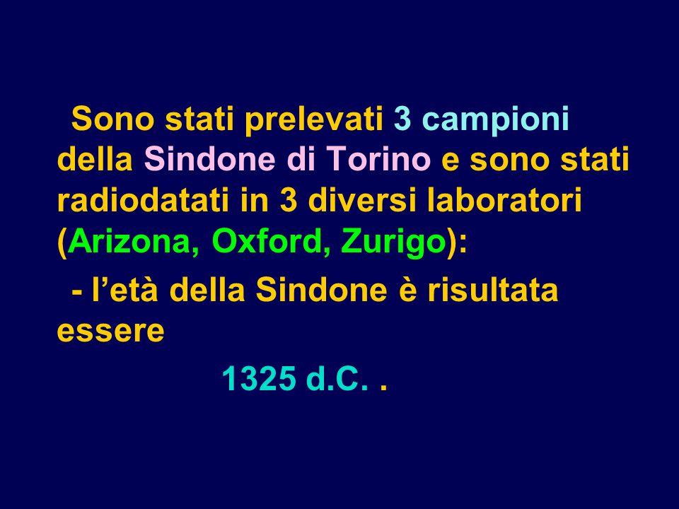 Sono stati prelevati 3 campioni della Sindone di Torino e sono stati radiodatati in 3 diversi laboratori (Arizona, Oxford, Zurigo):