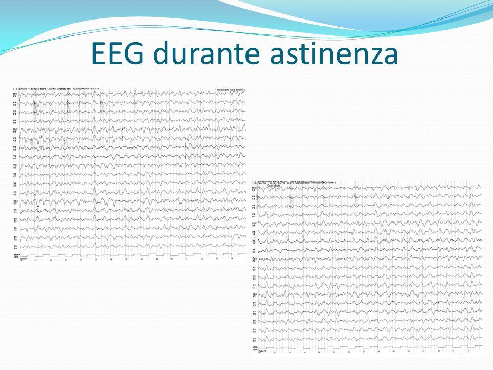 EEG durante astinenza