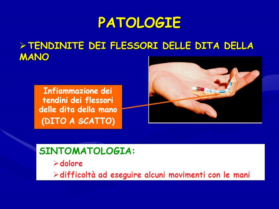 Infiammazione dei tendini dei flessori delle dita della mano