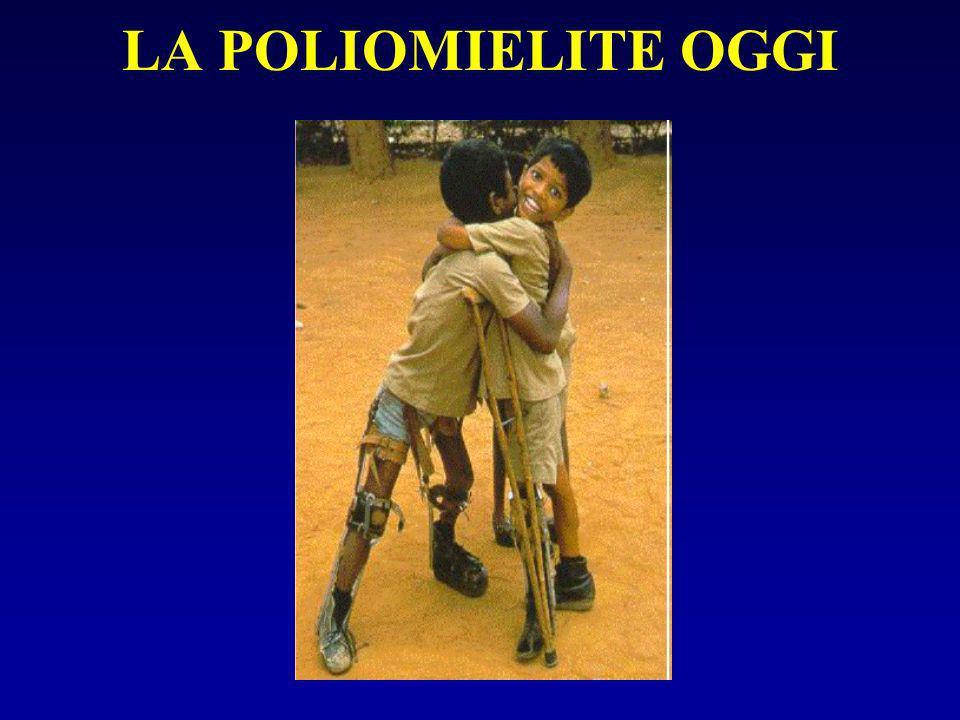 LA POLIOMIELITE OGGI