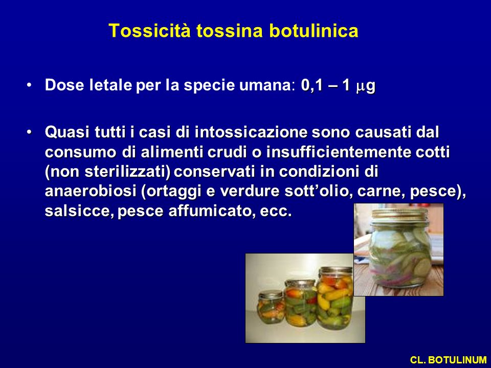Tossicità tossina botulinica