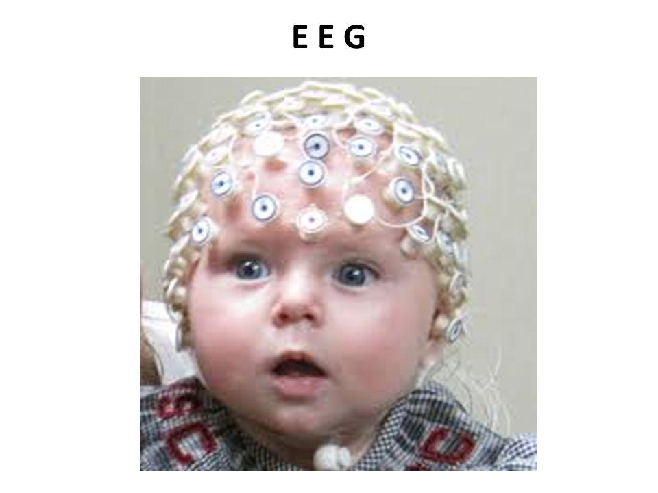 E E G