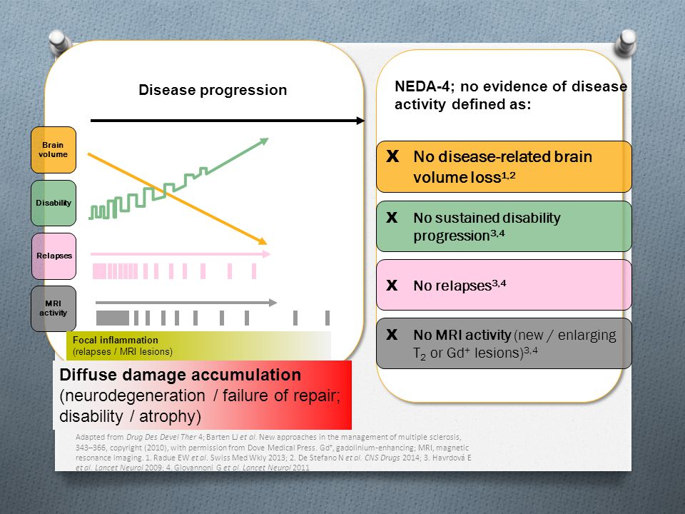 No disease-related brain volume loss1,2