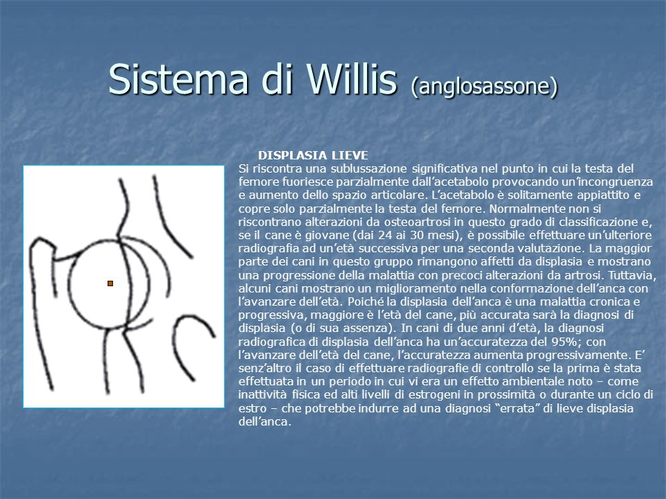 Sistema di Willis (anglosassone)