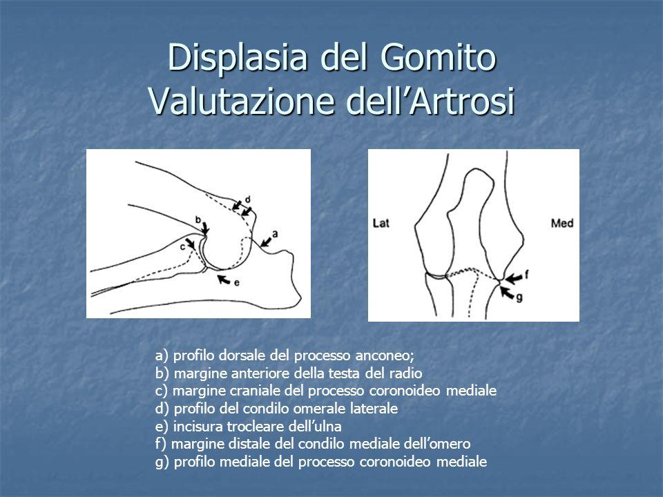 Displasia del Gomito Valutazione dell'Artrosi