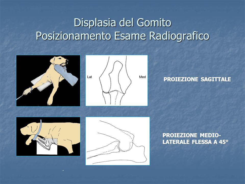Displasia del Gomito Posizionamento Esame Radiografico