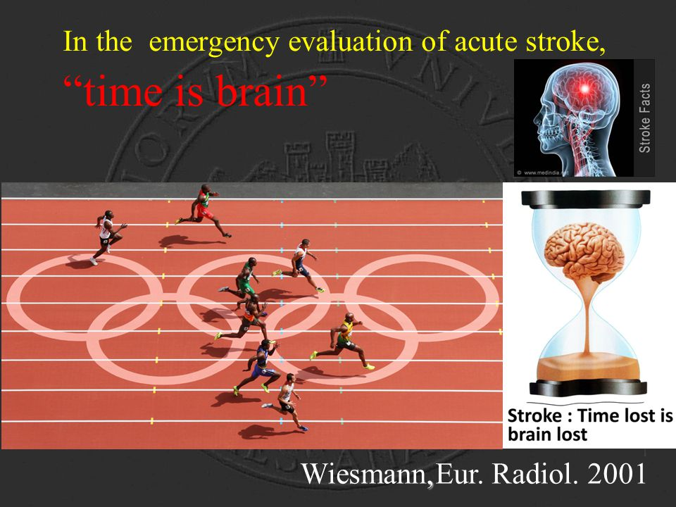 In the emergency evaluation of acute stroke, time is brain